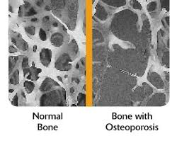 osteoporosis and bone pic