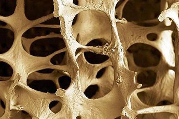 bone osteoporosis