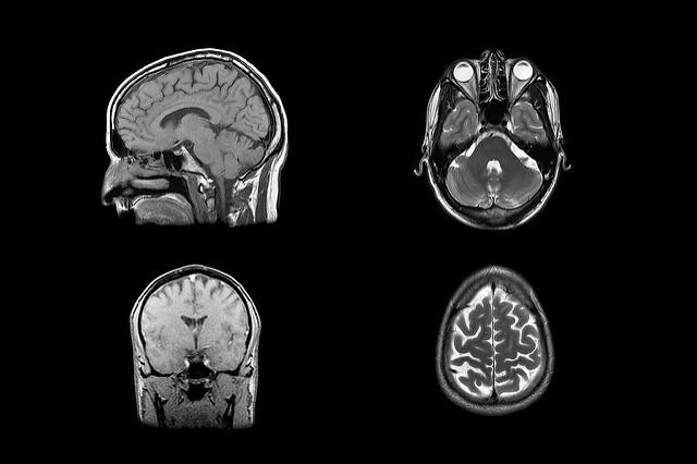 Head MRI scan